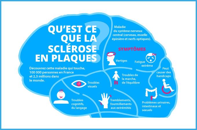 Définition Sclérose en Plaques